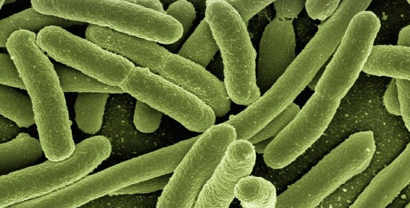 legionella bacteria in hot water system